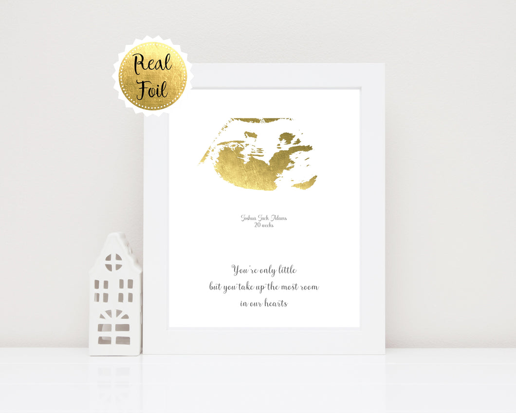 Gold Foil Prints - Baby Scan Keepsake, Ultrasound Keepsake Ideas, Baby Scan Print, Gold Foil Print