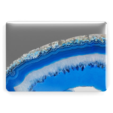 Agate Blue Apple Macbook Case