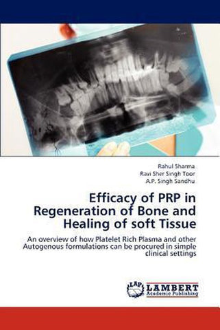 Efficacy of Prp in Regeneration of Bone and Healing of Soft Tissue, Rahul Sharma