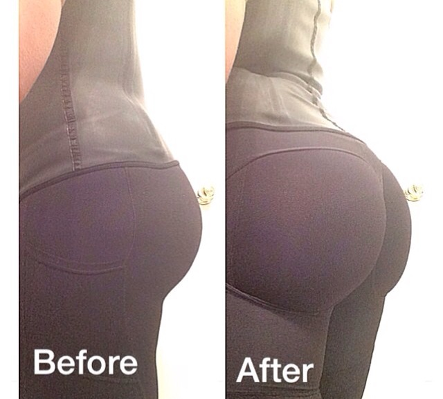 Perfect Sculpt Butt Lift