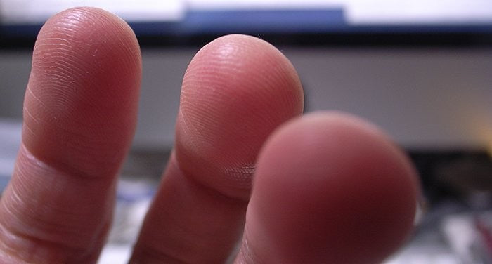 Living With Diabetes & Fingertip Sensitivity
