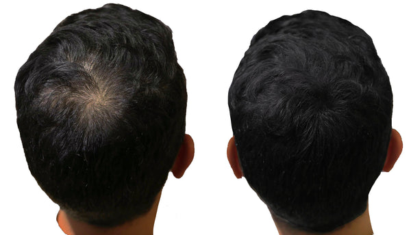 Thin hair solution - Hair Loss - Hair Fibres - Hair building fibers