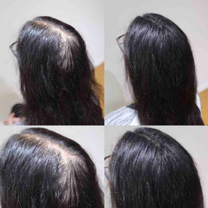 Hair Building Fibres - Dark Brown - 2 Months Supply*
