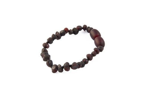 Amberocks Childrens Amber Bracelet - Raw Cherry Baroque