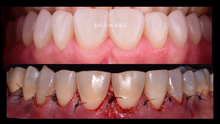 Crown lengthening and Pocket reduction surgery
