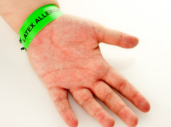 What Are Latex Allergy Symptoms And How Do You Stop Them