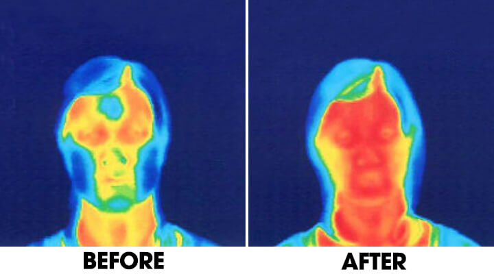 Before and after practicing Face Yoga – blood circulation in face and neck.