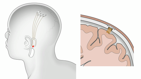 Neuralink N1 Implant Brain Attachment Side View