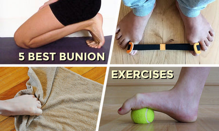 5 Best Bunion Exercises