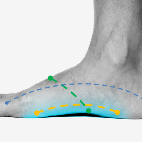 7 Most Likely Causes of Pain in the Foot Arch