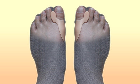Do Bunion Correctors and Protectors Really Work?
