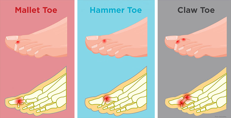 Differences between a hammer toe, claw toe and mallet toe