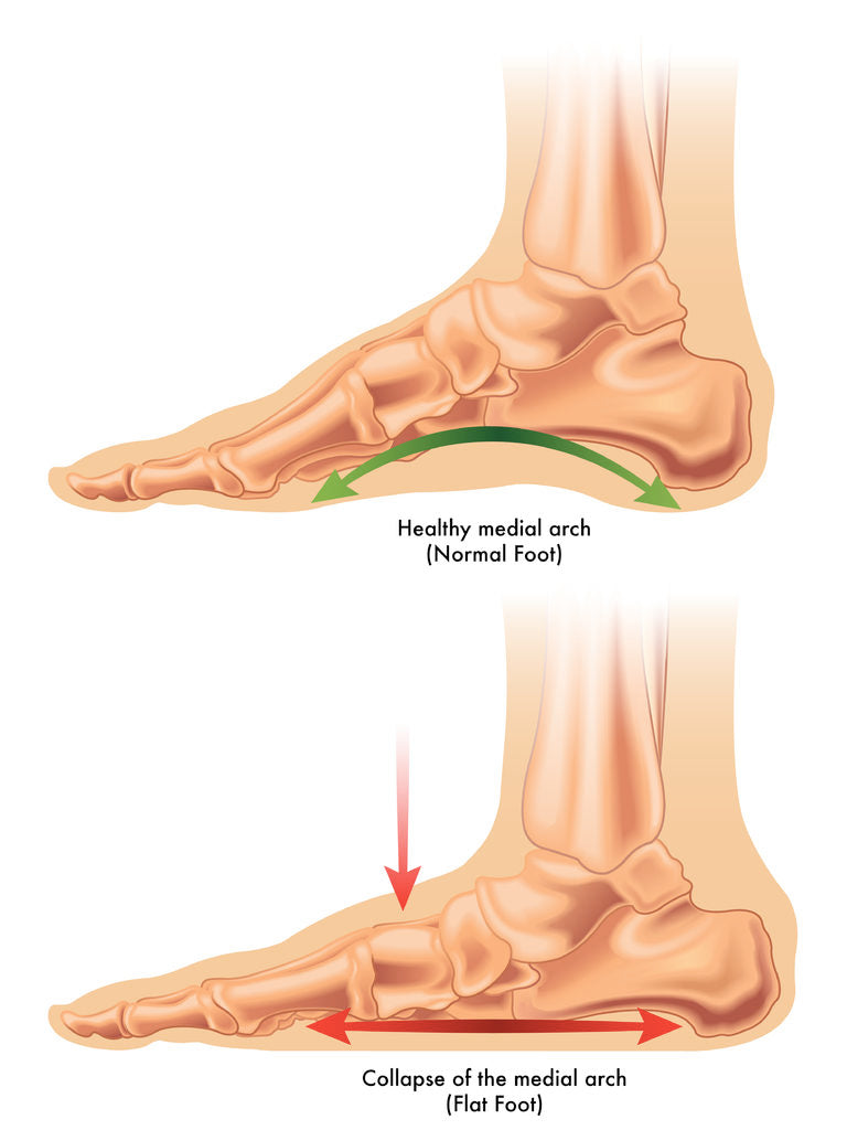 What is Flat Feet or Fallen Arches? | Causes, Symptoms and ...