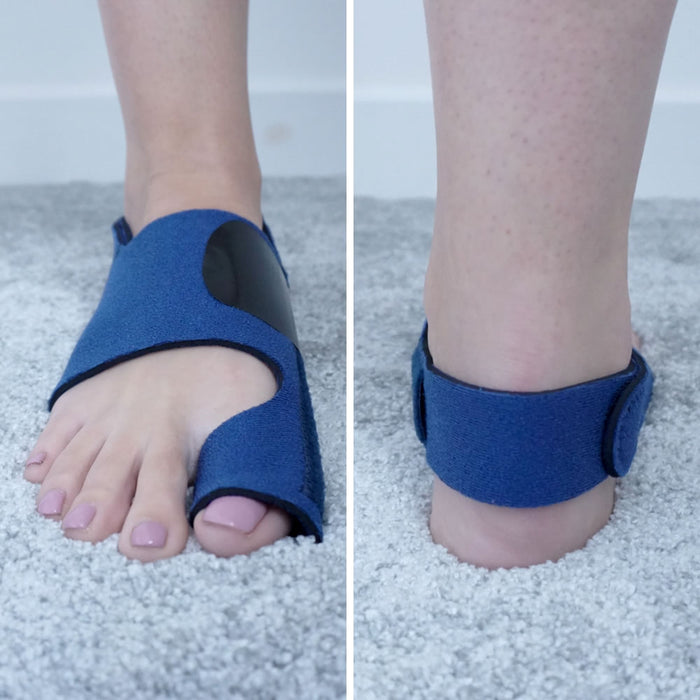 ActiveRestore Bunion Corrector Splints - Front and Back