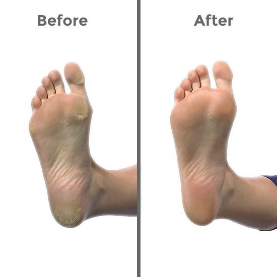hard skin on foot