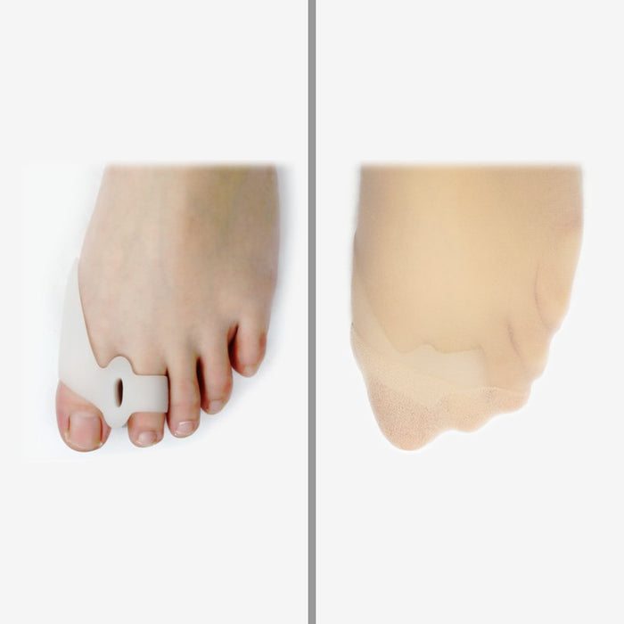 DuraFlex Gel Bunion Toe Separators