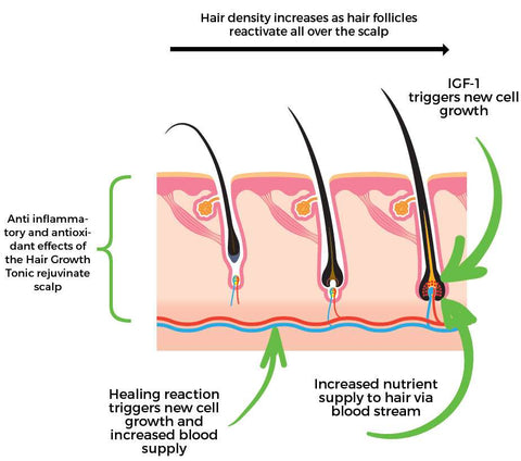 diagram of scalping products diagram of inside of a 747 pump derma hair growth roller™️ – pump haircare