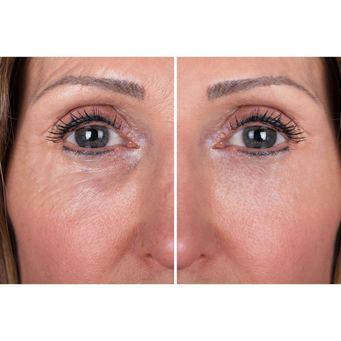 Image of Dermaworks Immaculift Instant Face Lift Serum, Eye Lift Serum. Reduces wrinkles, eyebags and dark circles. Lifts sagging skin.