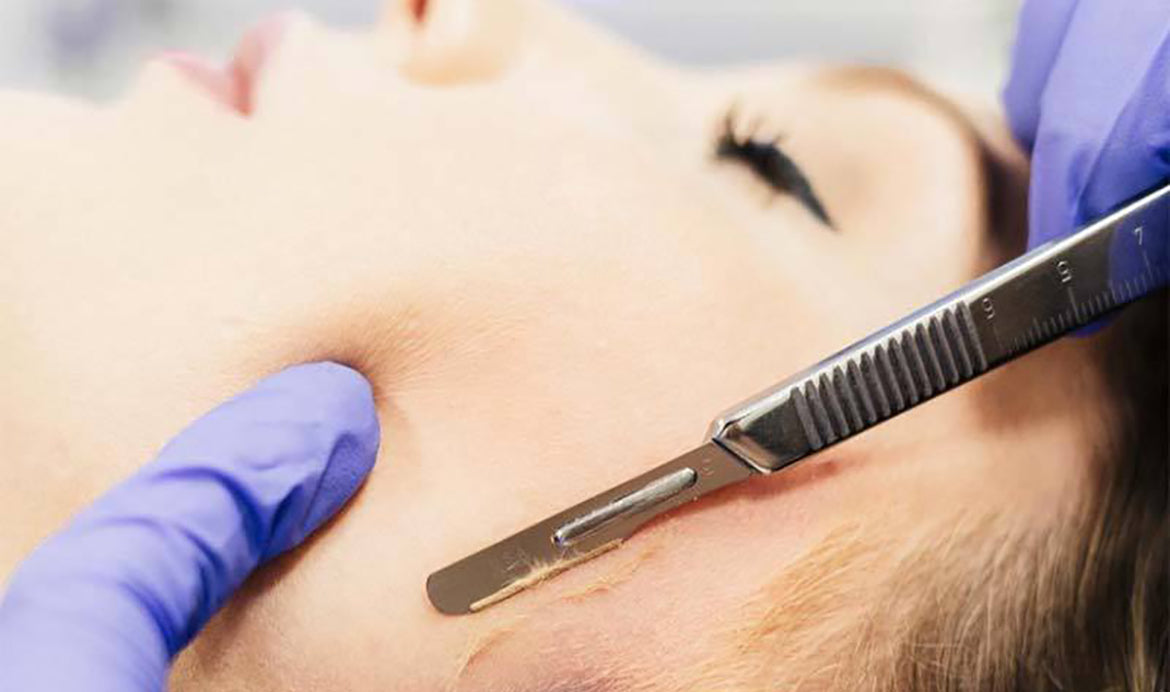 Dermaplaning | 621% Rise in Dermaplaning Internet Searches in 2020