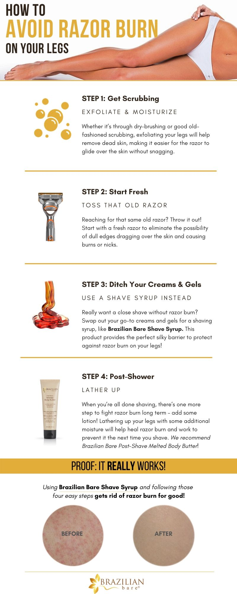 How To Avoid Razor Burn On Legs Infographic