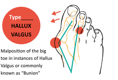 Hallux valgus bunion diagram malposition of the big toe