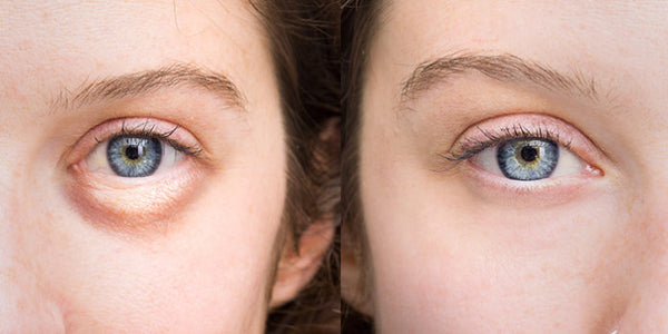 How To Get Rid of Puffy Eyes | Swollen Eyes | Bags Under Eyes Naturally - 18 Ways