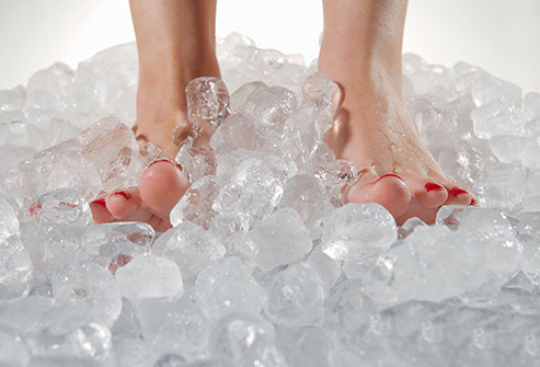 What Causes Swollen Feet