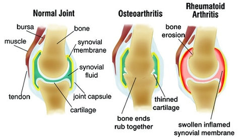 Arthritis variation, swelling and tenderness