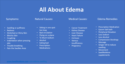 reduce edema swelling naturally
