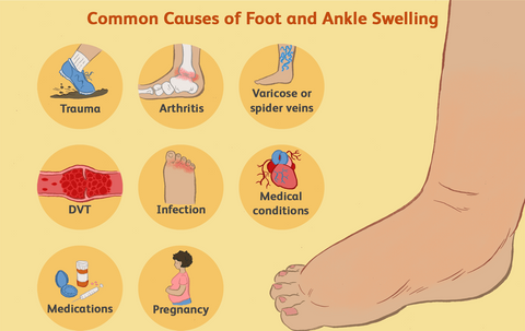 swellnomore cures swollen feet fast and naturally
