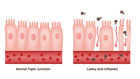 A visual of the tight junctions of your intestines