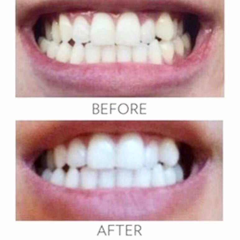 AP24 Whitening Fluoride Toothpaste by NU Skin