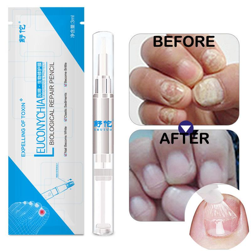 Herbal Nail Fungus Treatment Pen