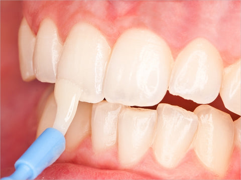 fluoride varnish application