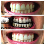 All Natural Charcoal Toothpaste for Teeth Whitening and Perfect Oral Hygiene