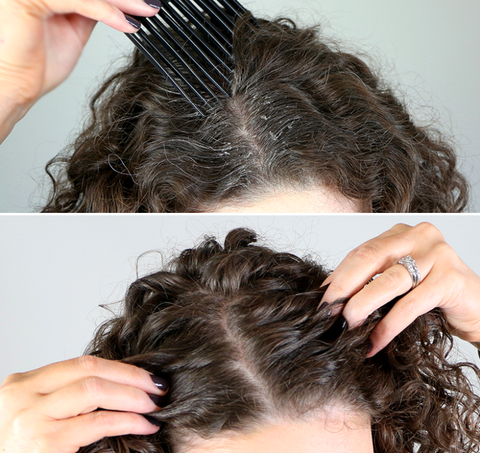 what are the main causes of scalp build up