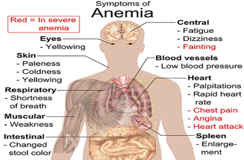 SUPPLEMENTS FOR ANEMIA | FOOD AND VITAMINS THAT TREAT ANEMIA