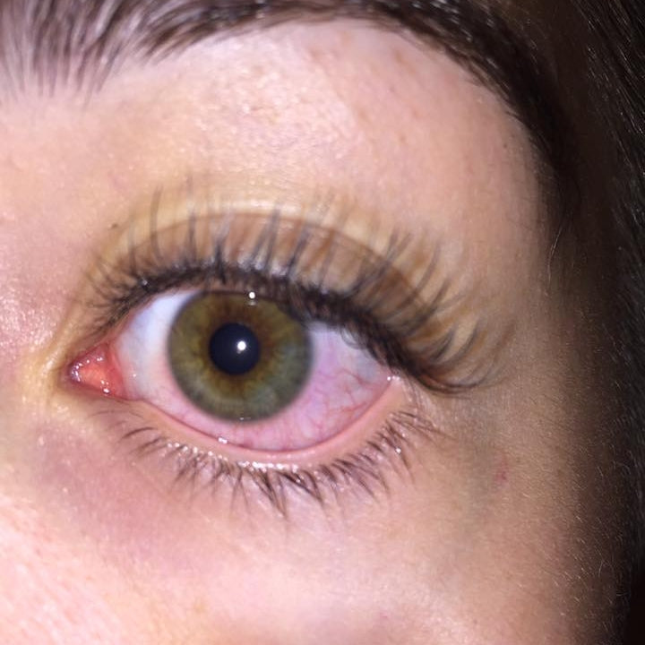 Are you allergic to eyelash extensions? - Lash Affair