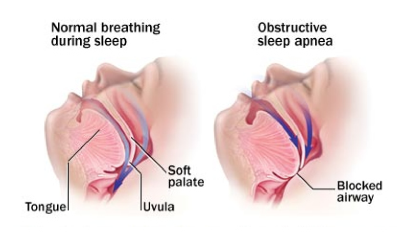 Is Sleep Apnea impacting your life?