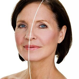 What Type of Hyaluronic Acid Really Works for Wrinkles?