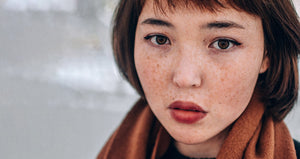 Picture of Asian women with freckles on her face