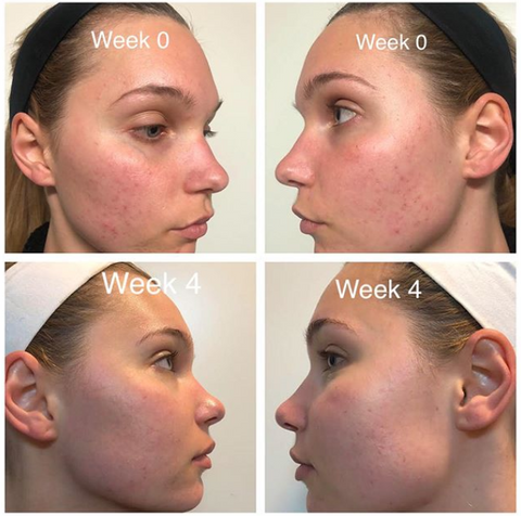 Compilation of 4 pictures showing showing a woman skin through 4 weeks