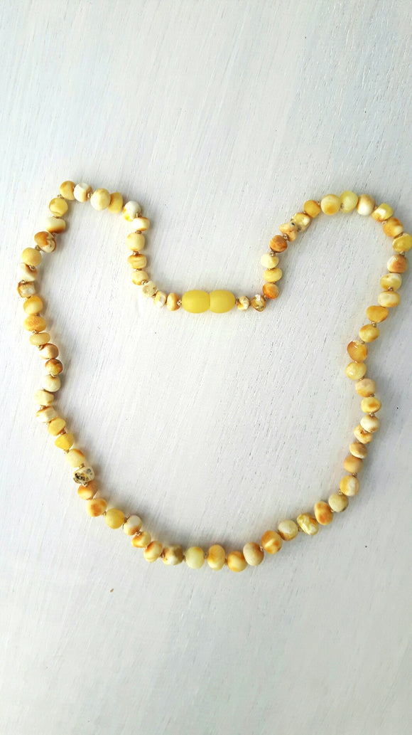 Adult Milky Amber Necklace