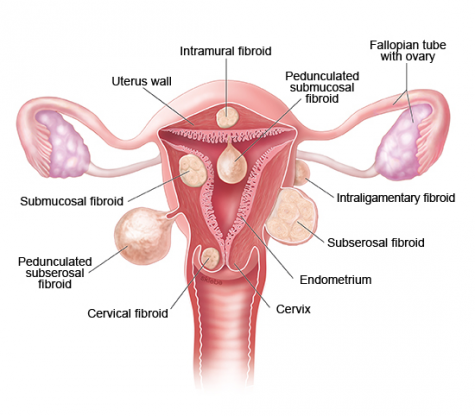 Natural Remedies for Fibroids & Cyst – Empress Organics