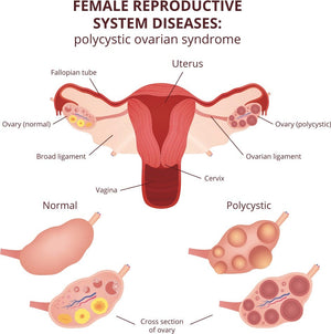 PCOS/Fibroids Relief Herbal Blend