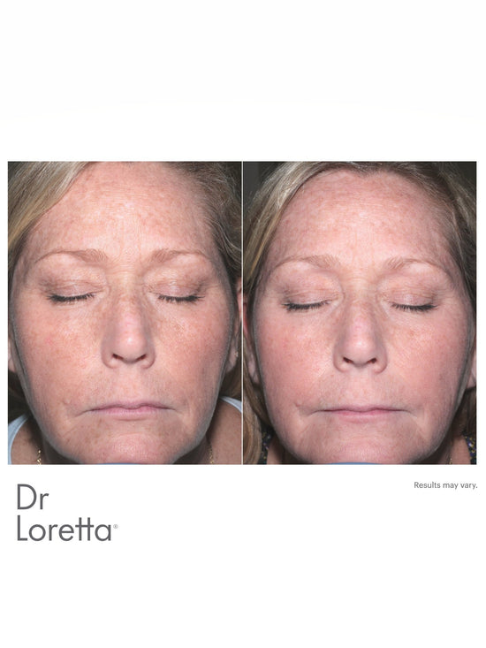 Intense Brightening Regimen Set - Dr. Loretta