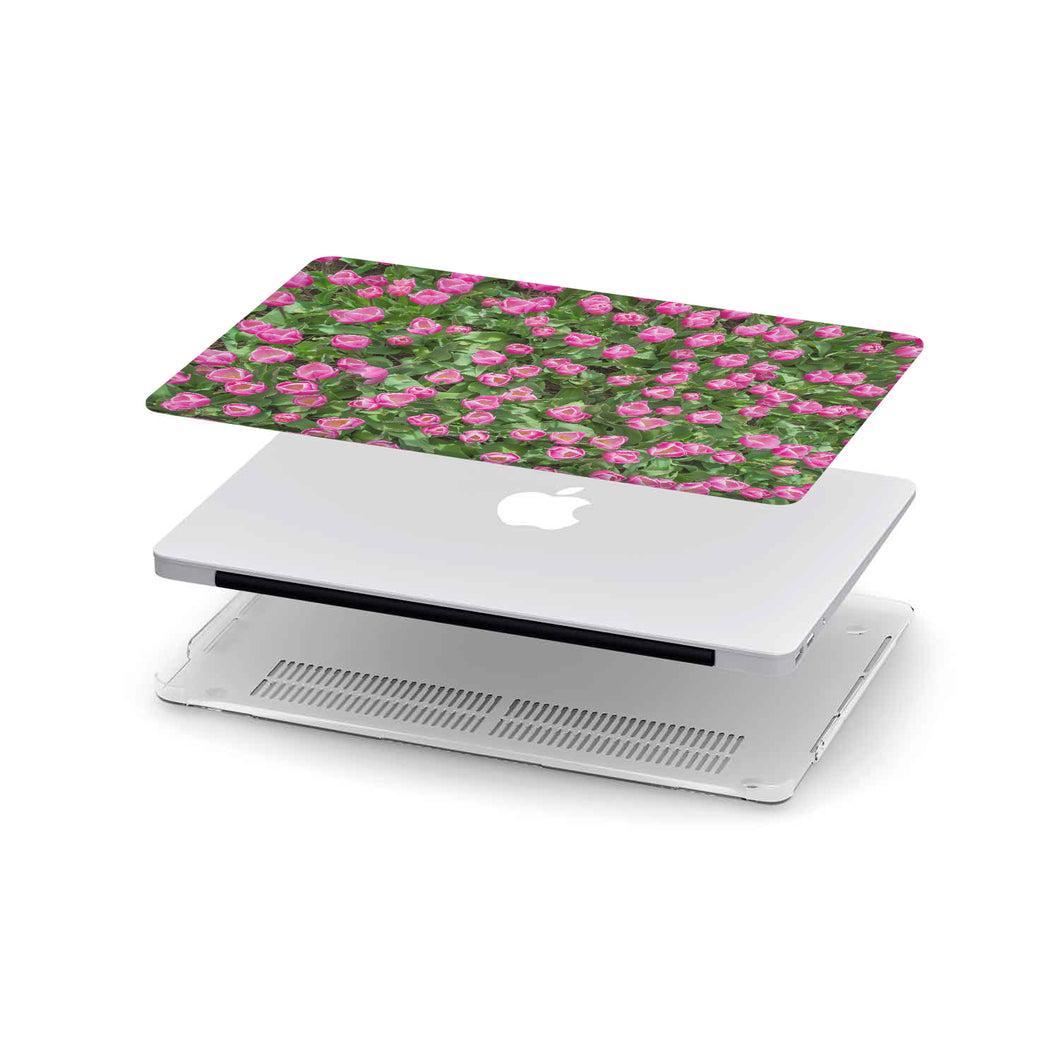 Macbook Case Pink Tulips