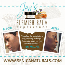 Load image into Gallery viewer, Blemish Balm Bundle - Sénica skin care moisturize dry, sensitive and eczema, prone skin.