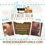 Blemish Balm - Sénica skin care moisturize dry, sensitive and eczema, prone skin.