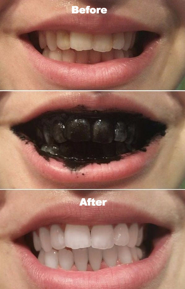 Natural Charcoal Activated Teeth Whitening Toothpaste Varyvanity